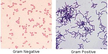 Bacterial Conjunctivitis Pink Eye Medication Antibiotics